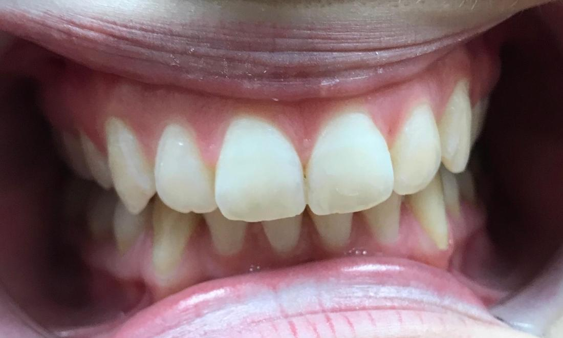 Straighter teeth